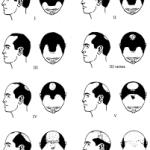 Types of hair loss