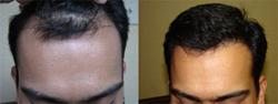 MHTA-hair-transplant