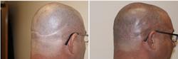 hair-pigmentation