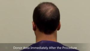 donar area hair transplant