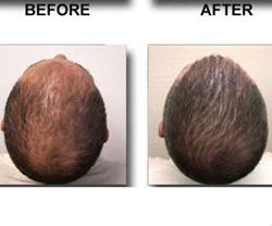 Neograft hair loss