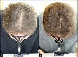 Lasercomb clinical study