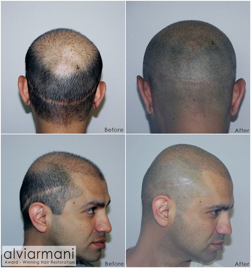 Alvi Armani Scalp Micropigmentation