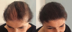 before and after womens hair loss