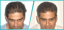 Renowned Cosmetic Medical Centre Now Offering Best Hair Transplant in Delhi