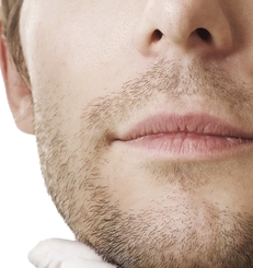 Beard to Scalp Hair Transplant