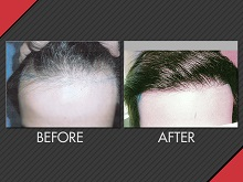 MAXiM specialize in performing MEGA hair transplant sessions