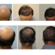 Ugraft hair transplant