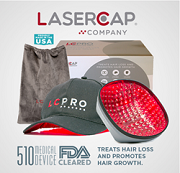 lasercap hair loss