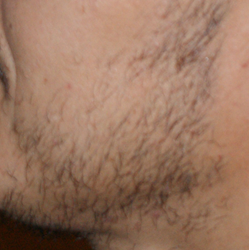 patchy_beard transplant