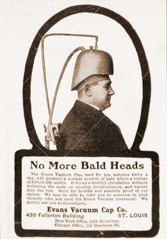 vintage baldness ads