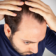 seek hair restoration services from properly trained physicians