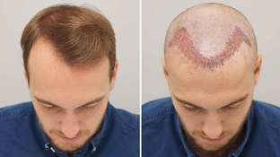 Hair Transplant Market Ultimate Outlook