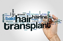 Global Hair Transplant Market Outlook 2018