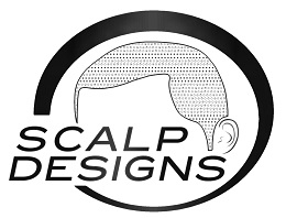 Scalp Designs assures permanent solution for hair loss