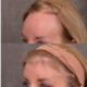 Groundbreaking Hairline Lowering Procedures