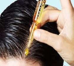 Global Hair Loss Medications Market 2018