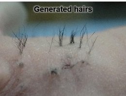 New Hair Loss Approach for Humans