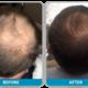 Jetop Treatment for Hair Restoration