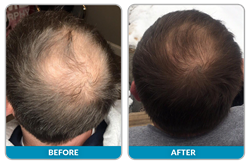 Jetop Treatment for Hair Restoration