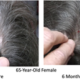 Preliminary Hair Regrowth Case Study