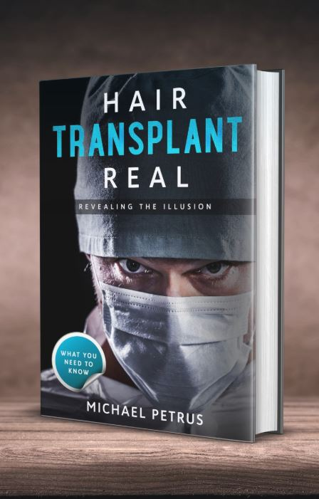 Uncover the Secrets of the Hair Transplant Industry