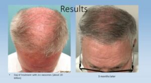 State-of-the-Art Hair Restoration Therapy