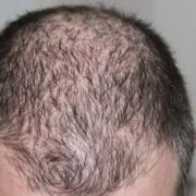Gene Tied to Balding