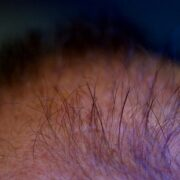 MicroRNA That Shows Promise for Hair Regrowth